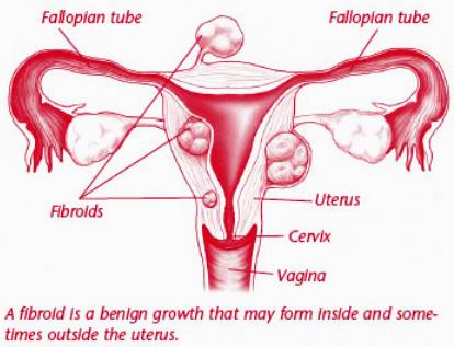 coumadin Vagina bleeding and