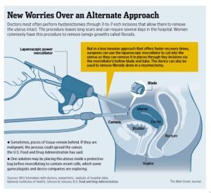 laparoscopic worries