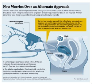 laparoscopic worries